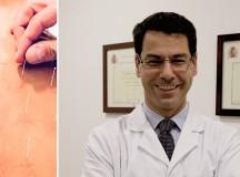 Conociendo todo sobre la acupuntura de la mano del Doctor Beltrán Carrillo